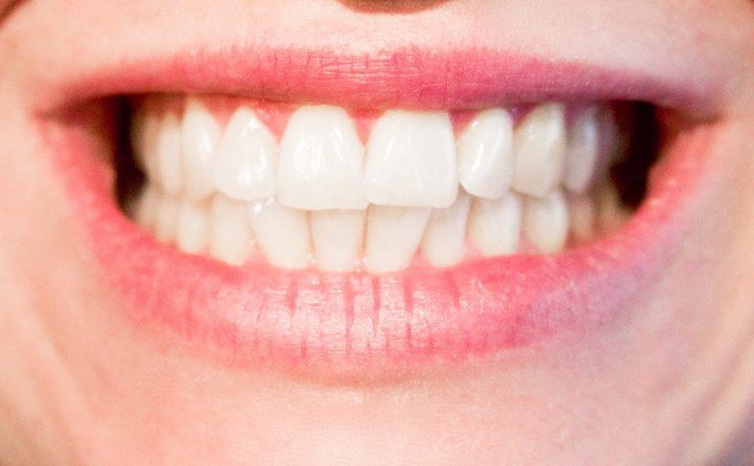 Nowoczesna technika stosowana w salonach stomatologii estetycznej może sprawić, że odzyskamy śliczny uśmieszek.
